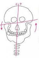 顎関節異常のイラスト