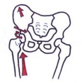 股関節痛の説明骨格図のイラスト